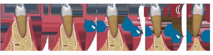 Gingivectomia Bisel Interno further Que Es La Periodontitis O Enfermedad De Las Encias further Enfermedad Periodontal Y Osteoporosis moreover plicaciones En Prtesis Fija Sobre Implantes Parte 1 25277 as well 3185190. on perdida osea alveolar