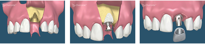 bone grafting with dental implant placement