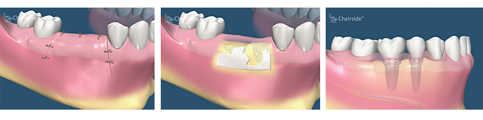 Bone grafting ridge preservation