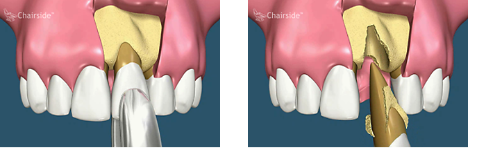 Single Tooth Grafting with Titanium Membrane Support