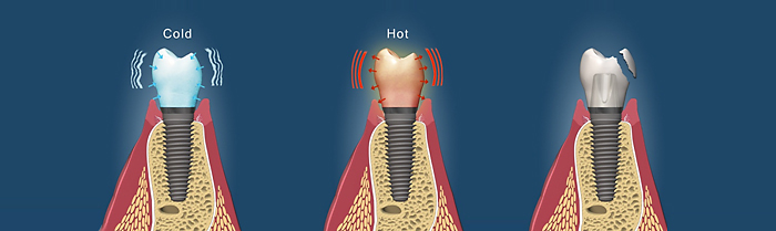 dental implant care information