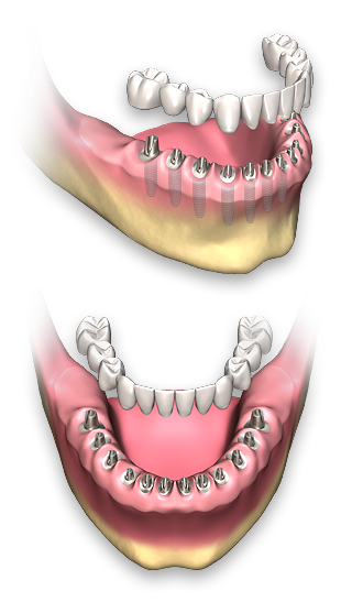 non removable dental implant prosthetics