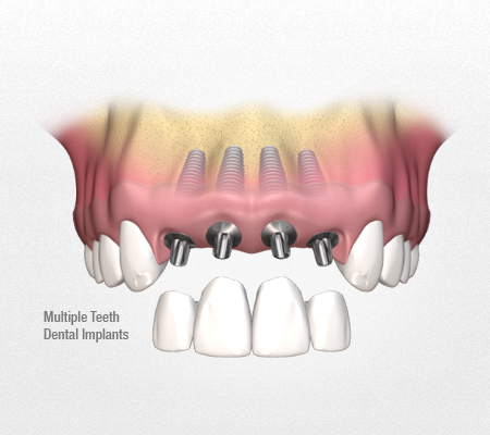 dental implants full arch