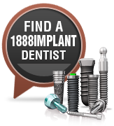 find a dental implant dentist