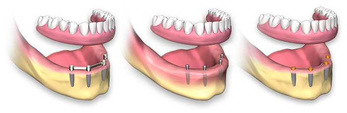 removable dental implant prosthetics