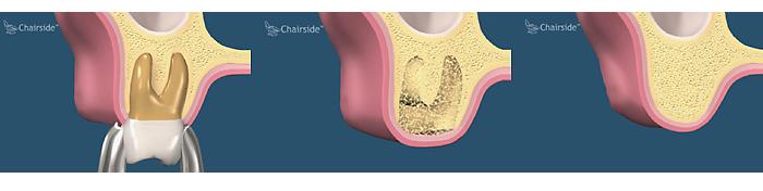 Sinus Grafting and Dental Implants