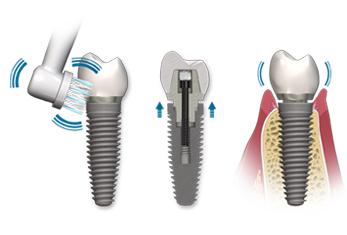 best dental implant dentist in tampa