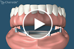 dental implant supported dentures - removable prosthetics video