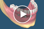 full arch dental implant video