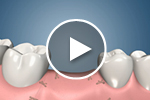 multiple tooth bone loss video