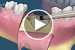 Bone grafting ridge preservation video