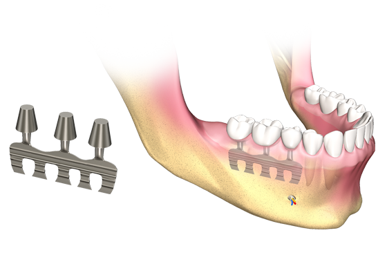 and more support from dental implant companies they are placed by creating a channel in the bone and pressing the blade into the channel