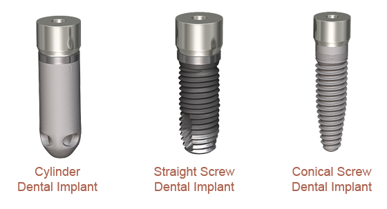 Dental Implant Types