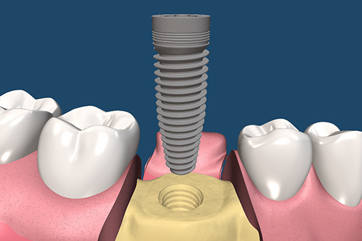 Dental Implant Procedures